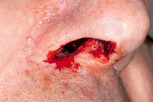 Red flag symptoms: Epistaxis