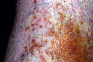 Differential diagnoses: Pigment formation