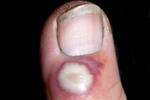 Pictorial case study - A new lesion on the thumb