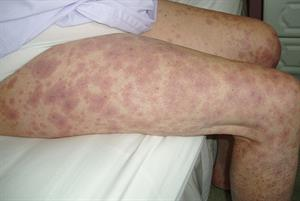 Diagnosis of cutaneous vasculitis