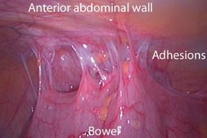 Case study: management of chronic pelvic pain