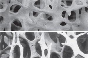Clinical Review: Osteoporosis
