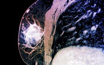 Palbociclib provides new option in breast cancer