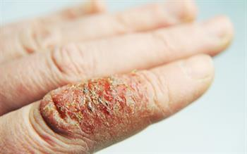 Antibiotic guidance issued for infected eczema