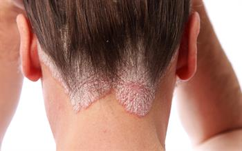 Psoriasis biologic approved for NHS prescribing