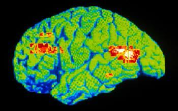 NICE recommends multimodal antidepressant for depressive episodes