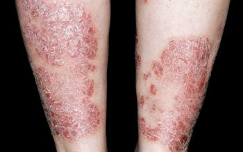 NICE approves guselkumab for plaque psoriasis