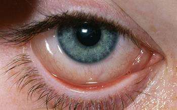 Increased reports of eye irritation with Xalatan