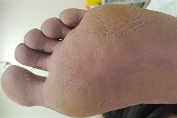 Pitted keratolysis resulting from hyperhidrosis case study