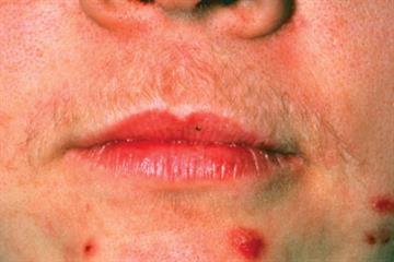Red Flag Symptoms - Amenorrhoea