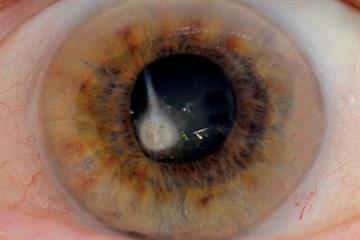 Clinical pictures: Eye problems