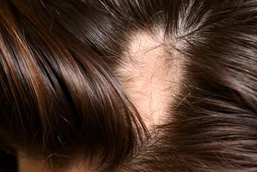 Hair loss - red flag symptoms