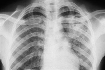 Tuberculosis: NICE guidance