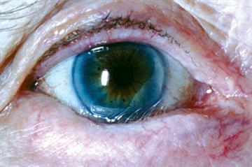 Clinical images: Conditions affecting the eye