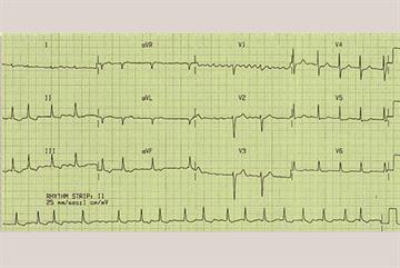 Clinical review: Atrial fibrillation