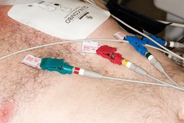 Emergency medicine: Acute coronary syndromes