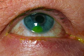 Eye pain - red flag symptoms