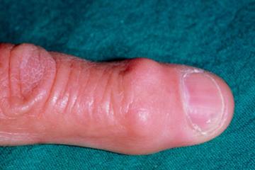 Musculoskeletal - Osteoarthritis of the hand