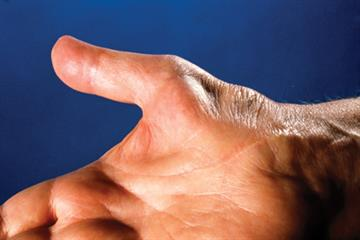 Common conditions of the hand