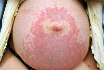 Skin changes and complaints in pregnancy