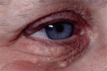 Differential diagnoses: Facial lesions