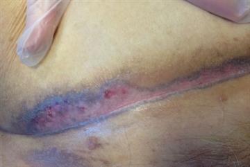 Case study: Diagnosing a persistent rash