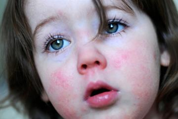 Pressure to cut antibiotic use contributing to outbreaks of scarlet fever, say GPs