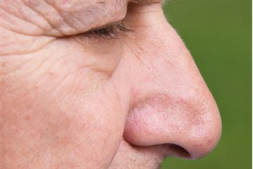 Loss of smell 'a predictor of five-year mortality'