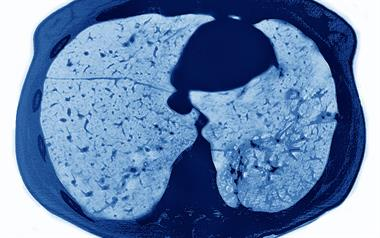 New cystic fibrosis treatment targets underlying cause of the disease