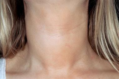 Hypothyroidism (THY) QOF tips