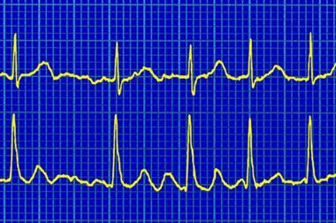 Atrial fibrillation (AF) QOF tips