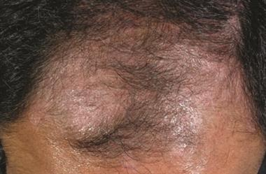 Management of scalp psoriasis in primary care