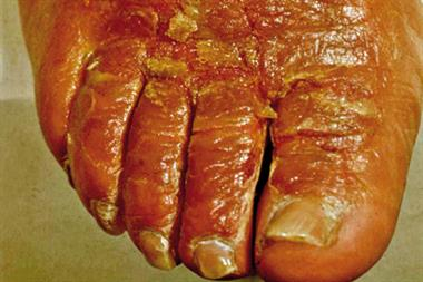 Topical antibiotic resistance in skin infections