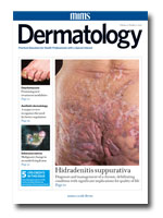 Editorial: Managing the psychological impact of skin disease