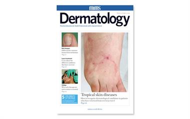 Editorial: Improving our diagnosis of dermatological conditions