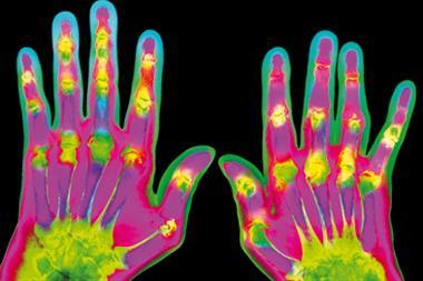 Pain therapy in rheumatoid arthritis