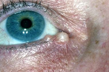 Inflammatory lesions of the eyelids
