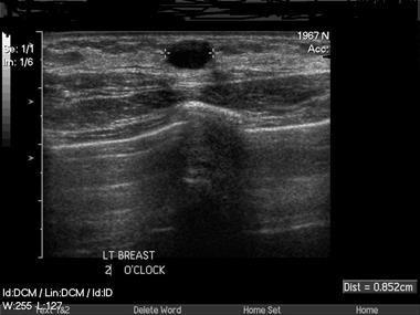 Evidence base: Benign breast disease