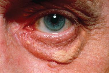 Journals Watch - Xanthelasma, dementia and obesity