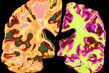 Alzheimer's decline slows with age, risking missed diagnoses
