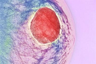 Assessing a woman with a breast lump