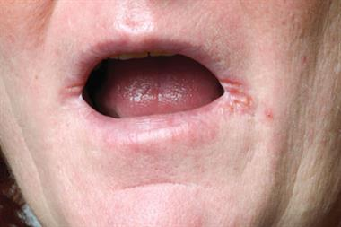 Pictorial case study: Painful sores