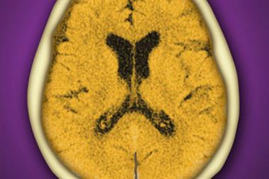 Journals Watch - CT scans, memory loss and H1N1