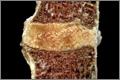 Glitazone bone-loss trigger found