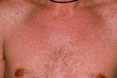 Measles rise in Scotland hits young adults