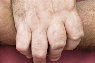 Journals club - Rheumatoid arthritis and cardiovascular disease risk