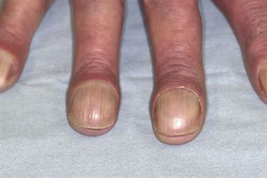 Clinical images: Nails