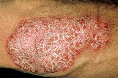 RCGP Curriculum - 15.10 Skin Problems