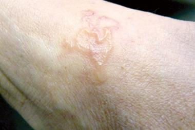 Case Study - Diagnosing an itchy rash