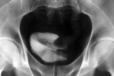 The basics - Visible haematuria